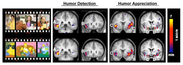 joe-moran-seinfeld-brain-study.jpg