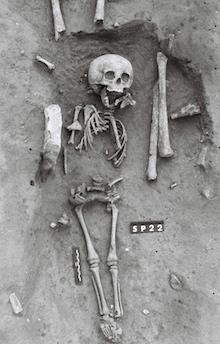 down-syndrome-skeleton-220.jpg