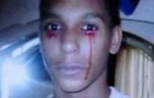 Teen Cries Tears of Blood