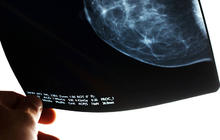 Busted! 8 mammogram truths every woman must know