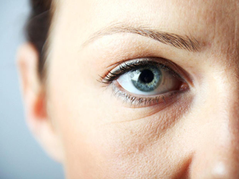 Фото девушки с опухшими глазами