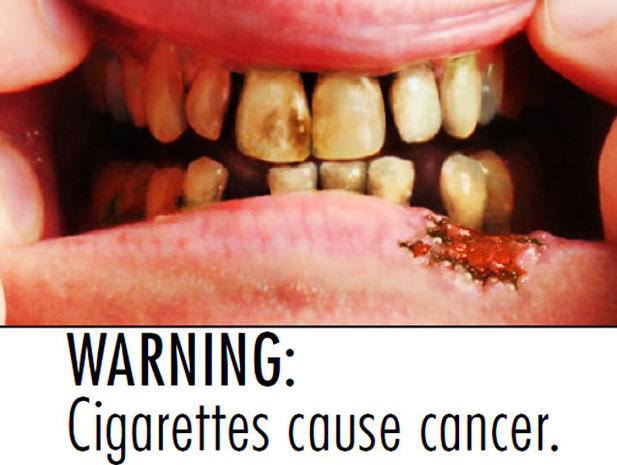 33 New Terrifying Tobacco Warning Labels