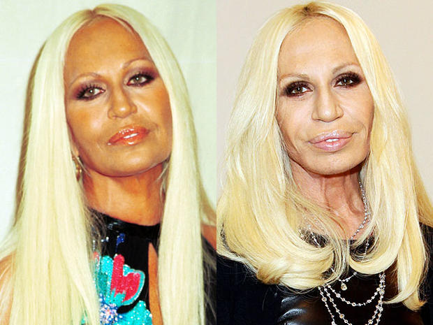 Plastic Surgery Disasters
