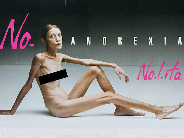 Italian billboard against anorexia featured 59-pound French model Isabelle Caro.