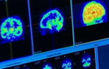Scan May Predict Alzheimer's