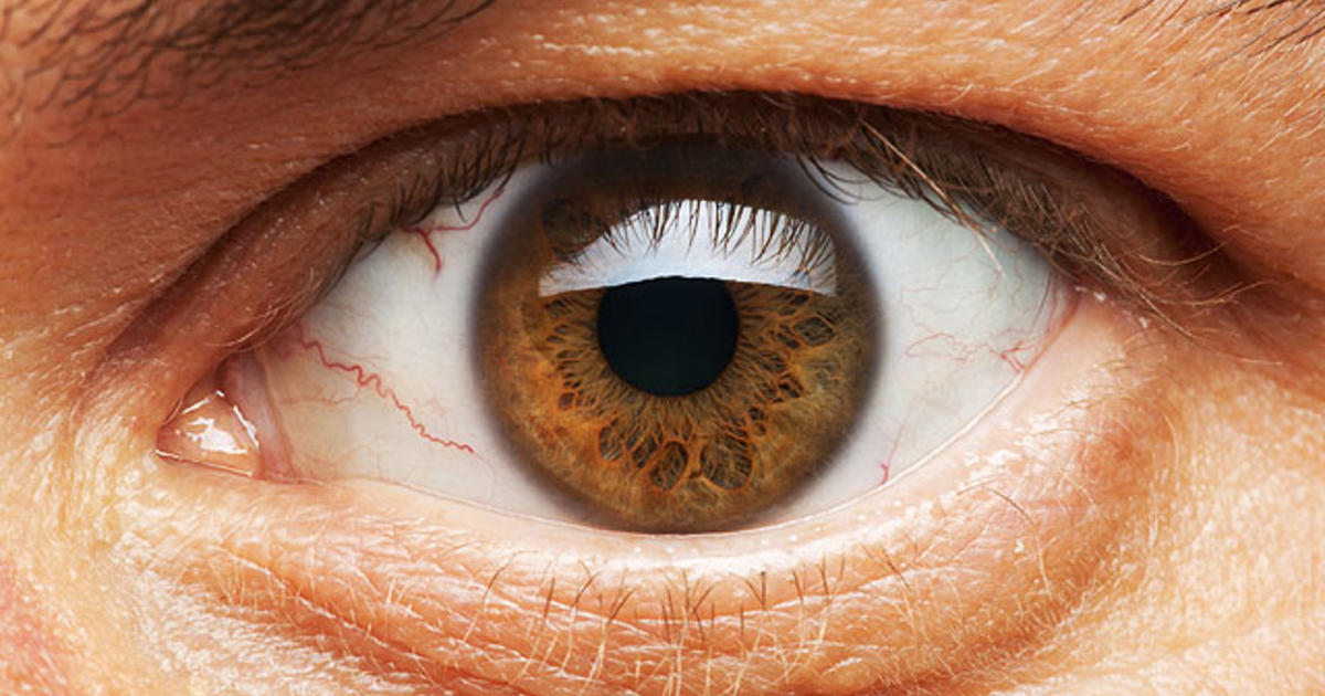 Macular Degeneration Will Discovery Bring Cure For