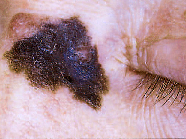 Is it skin cancer?