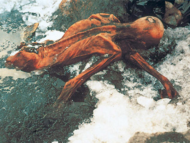 """First look at """"Oetzi"""" the Neolithic ice man"""
