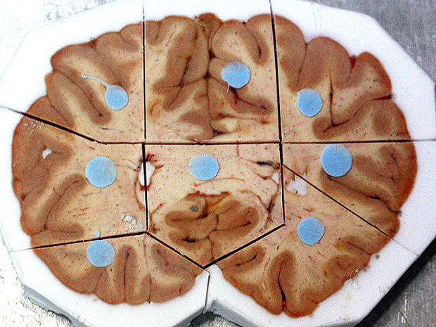 GPS for the brain? New brain atlas wows scientists