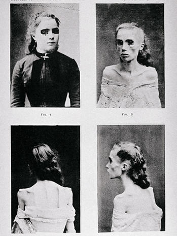 19th and 20th century psychiatry: 22 rare photos