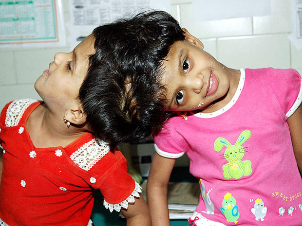 Conjoined twins: 40 amazing photos (GRAPHIC IMAGES)