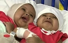 Conjoined twins successfully separated in London