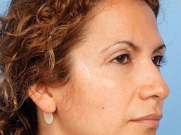 "Dinora Rodriquez, American Society of Plastic Surgeons, ""Do your homework"" campaign"