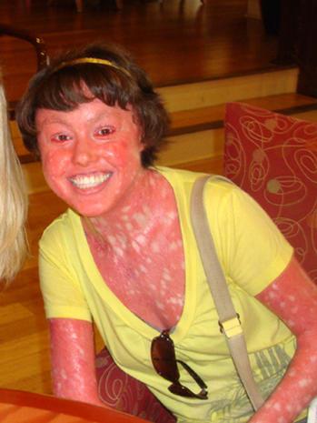 Ichthyosis En Confetti 9 Uncommon Skin Conditions