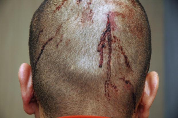 George Zimmerman's injuries
