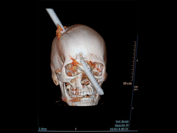 bar impales skull brazil