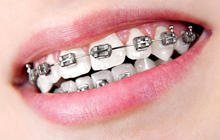 7 troublesome ways teens destroy their teeth