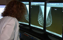 Study: Obesity ups risk of breast cancer recurring