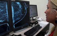 Breakthrough in search for breast cancer cure
