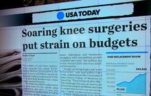 Medicare knee replacement surgeries soar