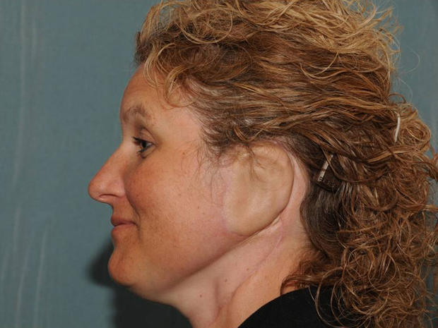 Ear reconstruction surgery (Graphic Photos)