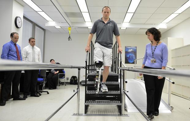 """Bionic"" man climbs 103 flights"