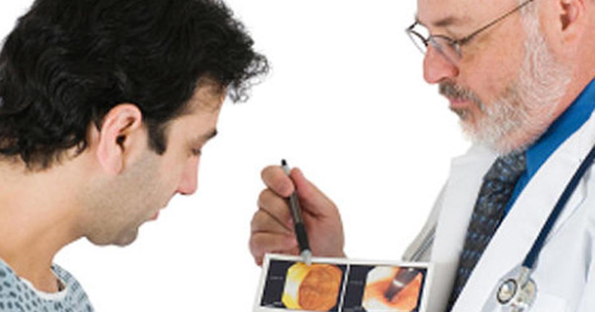 Work that remedies natural prednisone like hemorrhoids