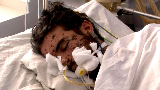 A patient at the Emergency hospital in Kabul, Afghanistan.