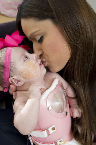 Baby born with heart outside body