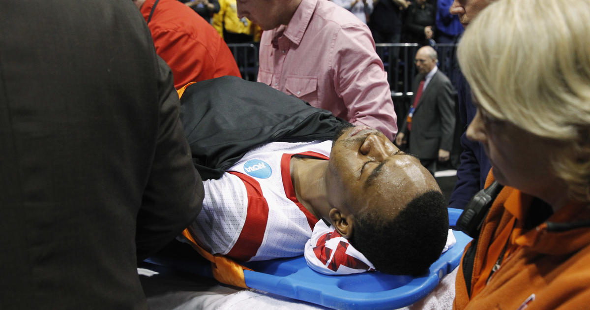 Kevin Ware injury could put scholarship at risk - CBS News