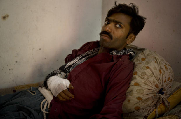 Barber Elias, 25, a Pakistani Christian who was beaten by radical Muslims in the Joseph Colony