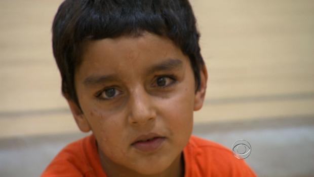 6岁的Sajad在阿富汗受伤严重,当时炸弹在他家旁边爆炸。