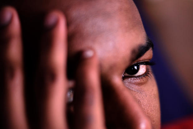 Racist violence victim Omar, 28, from Guinea, hides his face as he talks to AFP