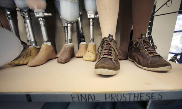 Boston company gives runners new legs