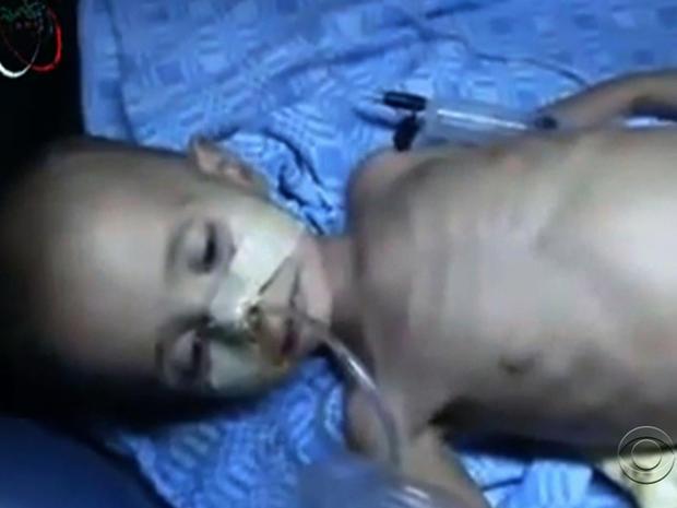 syria_children_starving_girl.jpg