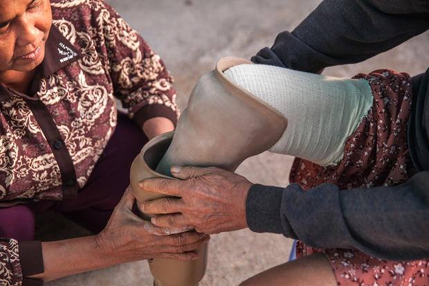 Help for Cambodian land mine victims