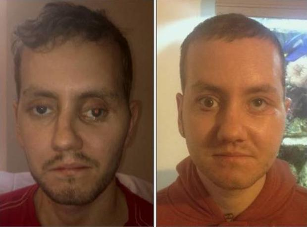 man 39 s face reconstructed with 3d printer after motorcycle accident cbs news. Black Bedroom Furniture Sets. Home Design Ideas