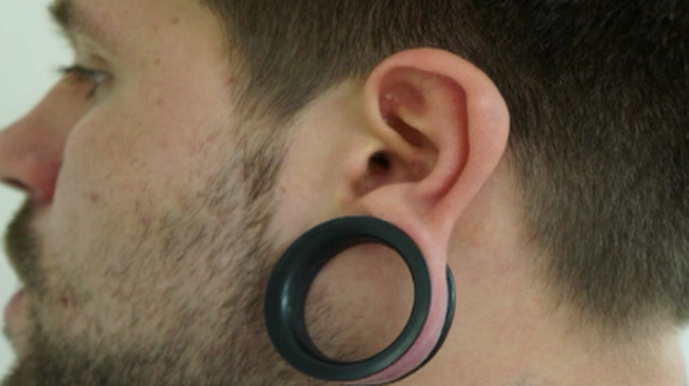 how to close stretched ears without surgery
