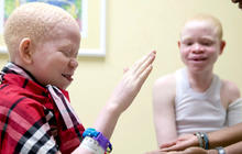 Hunters killing albino children for limbs