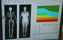 Fat scanner reveals hidden risks