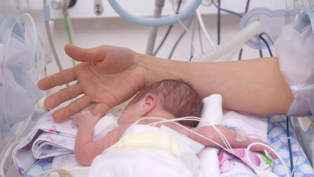 Extreme temperatures could increase preterm birth risk