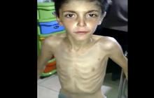 Syrian town's starvation shows latest tragedy in civil war