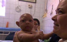 Investigating link between Zika and birth defects