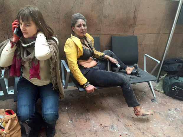 In this photo provided by Georgian Public Broadcaster and photographed by Ketevan Kardava, two women are seen wounded in Brussels' airport in Belgium after two explosions March 22, 2016.