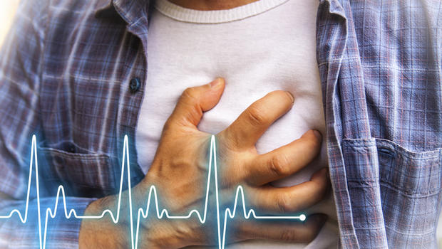 how to know if you had a heart attack