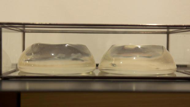 博物馆的破碎 - 关系 - 硅胶植入物-620.jpg