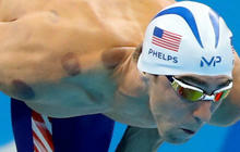"""Why Olympians are doing the """"cupping"""" treatment"""