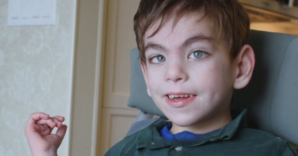 Mother of 6-year-old with microcephaly: