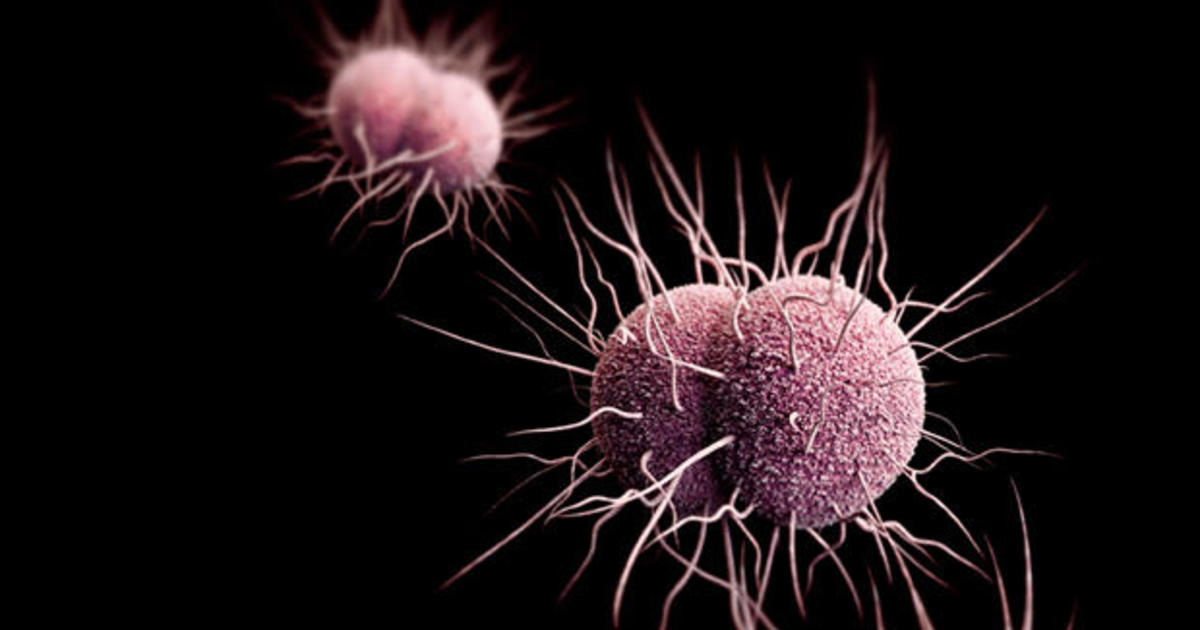 drug resistant gonorrhea a growing threat in the u s