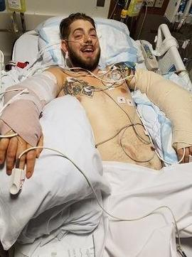 john-peck-after-arm-transplant.jpg